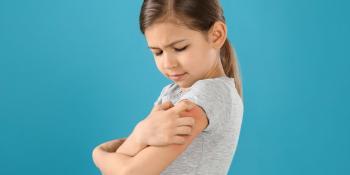 Vitamina D e dermatite atopica: sono collegate?